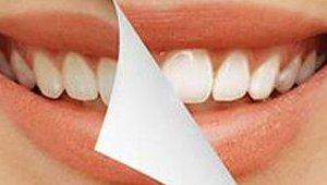 teeth_012818.jpg